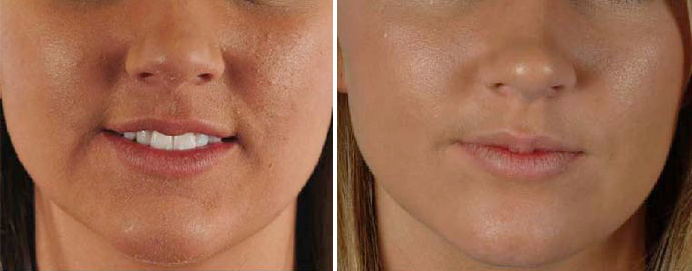 Microdermabrasion Clear Healthy Skin